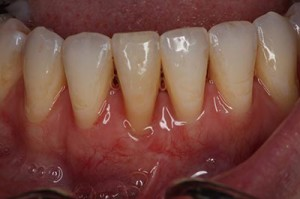 free-gingival-graft-after
