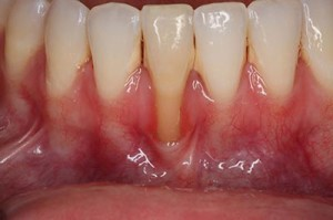 free-gingival-graft-before